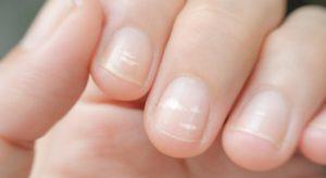 Белые ногти: польза или вред
